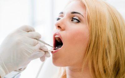¿Manchas negras en los dientes? Sus causas y solución